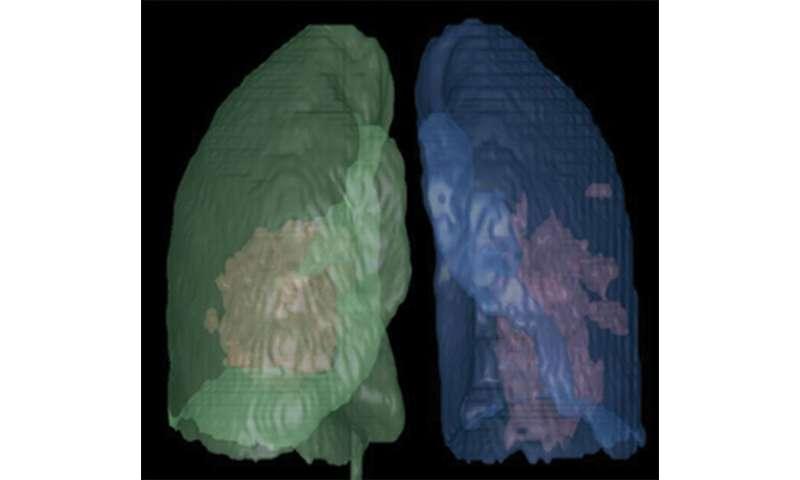 CT of coronavirus disease (COVID-19) versus CT of influenza virus pneumonia