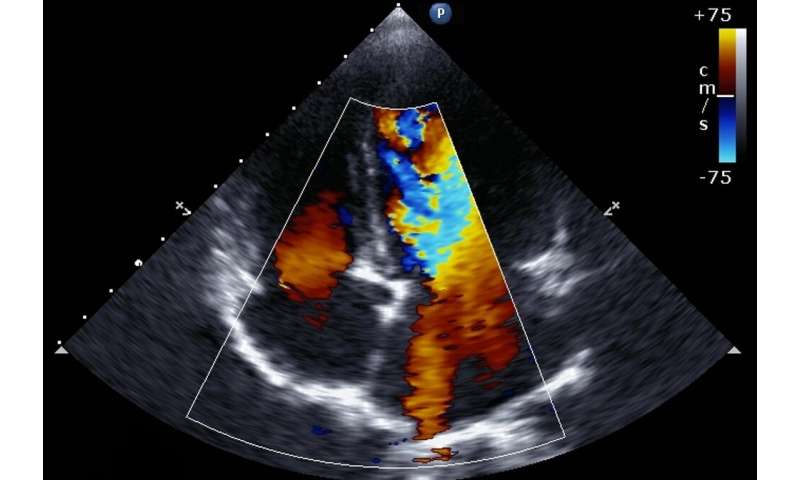 Damage to heart's right ventricle predicts a greater chance of death from COVID-19