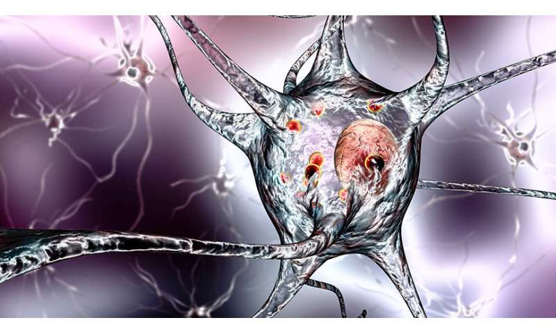 Diverting cells' energy pathway could pave way for new Parkinson's treatments