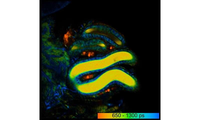 Dresden biologists make living sperm glow