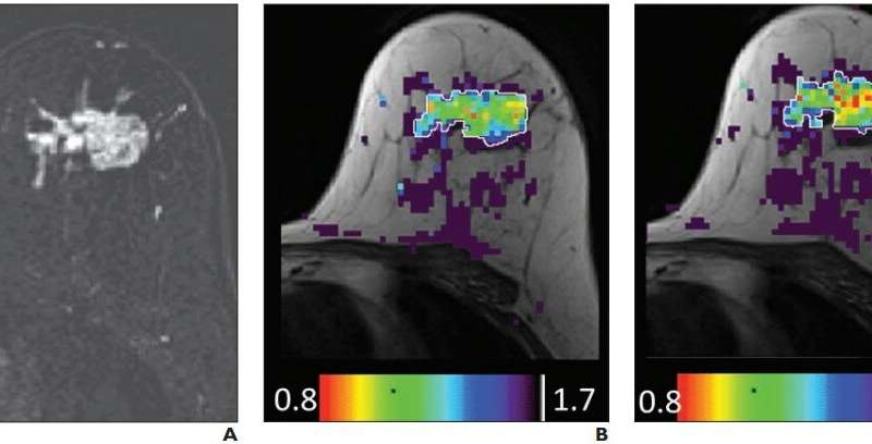 Effect of gadolinium-based contrast agent on breast diffusion-tensor imaging