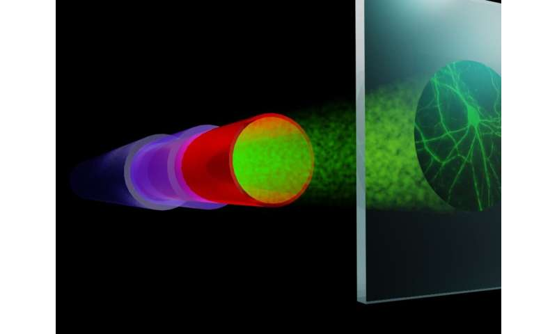 Fiber imaging beyond the limits of resolution and speed