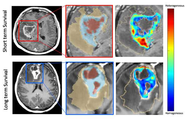 Finding new clues to brain cancer treatment