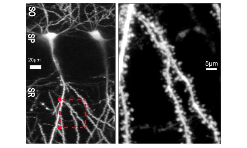 Findings weaken notion that size equals strength for neural connections