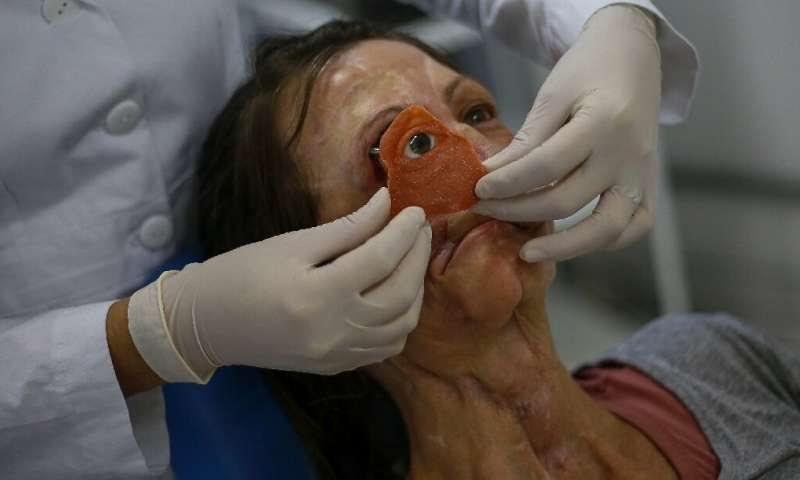 Fitting the facial prosthesis is a meticulous process