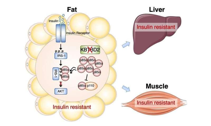 Gene in fat plays key role in insulin resistance