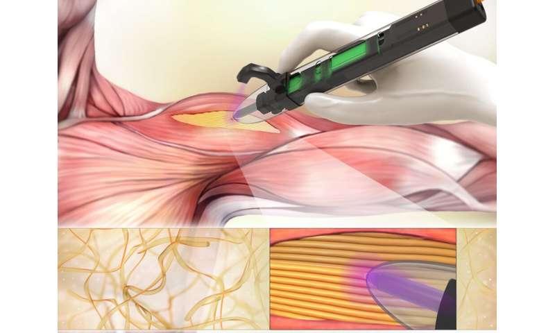Handheld 3-D printers developed to treat musculoskeletal injuries