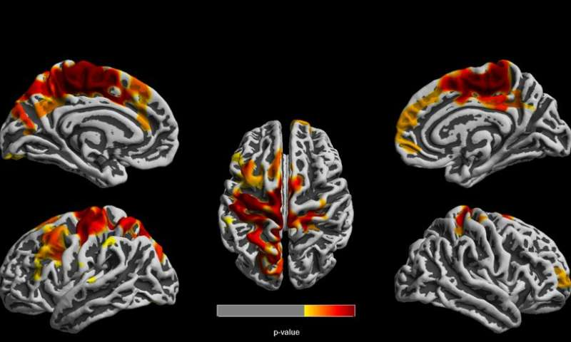 High air pollution exposure in 1-year-olds linked to structural brain changes at age 12