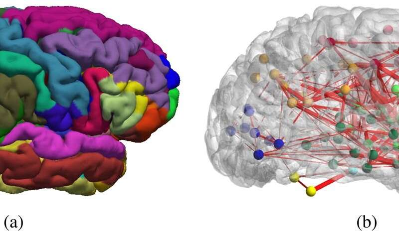 How Brain Networks Change With Age