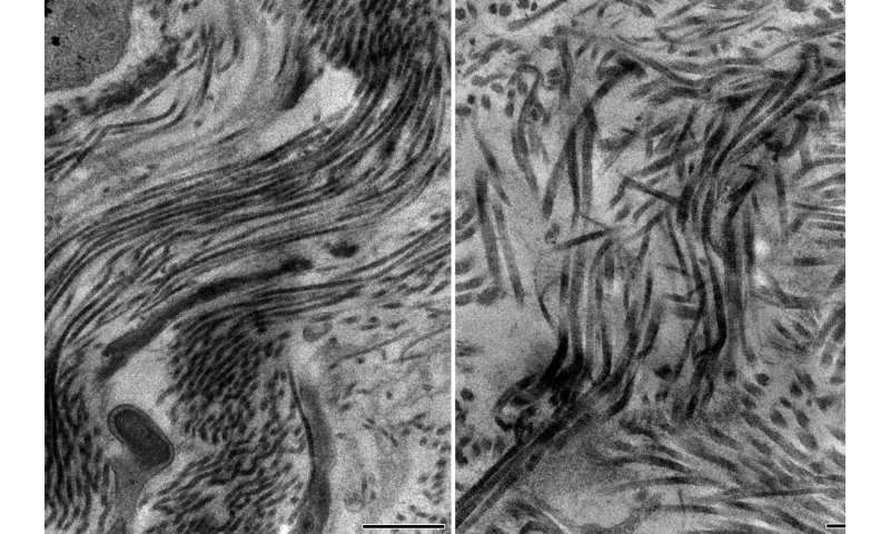 How the body regulates scar tissue growth after heart attacks