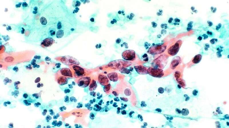 HPV home test may reduce cervical cancer disparity, improve outcomes for blacks, latinos