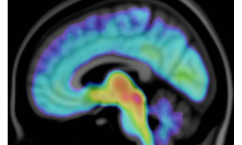 Imagery reveals autism-related brain differences