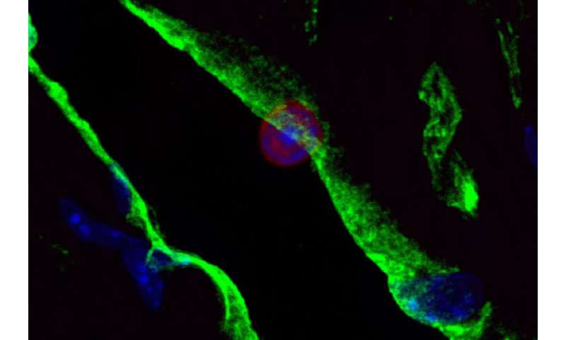 Immune cells play surprising role in heart, mouse study suggests
