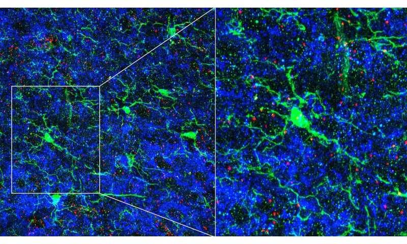 Immune cells sculpt circuits in the brain