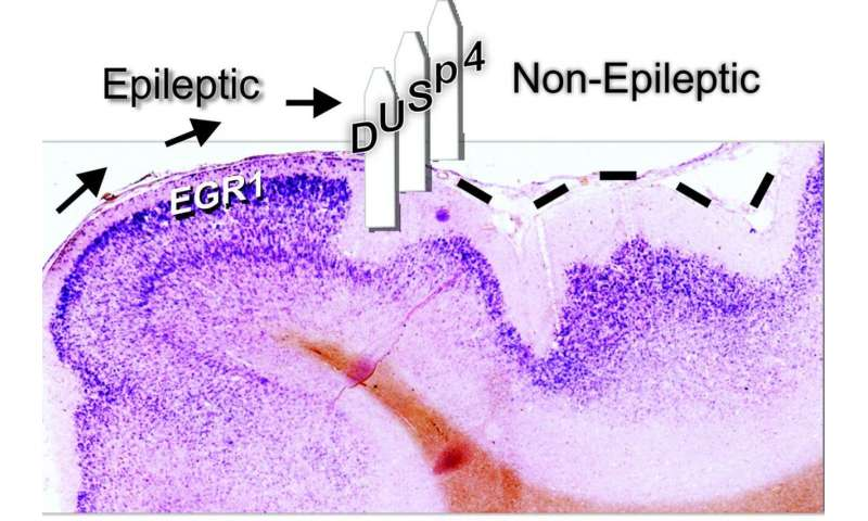 Inhibiting epileptic activity in the brain