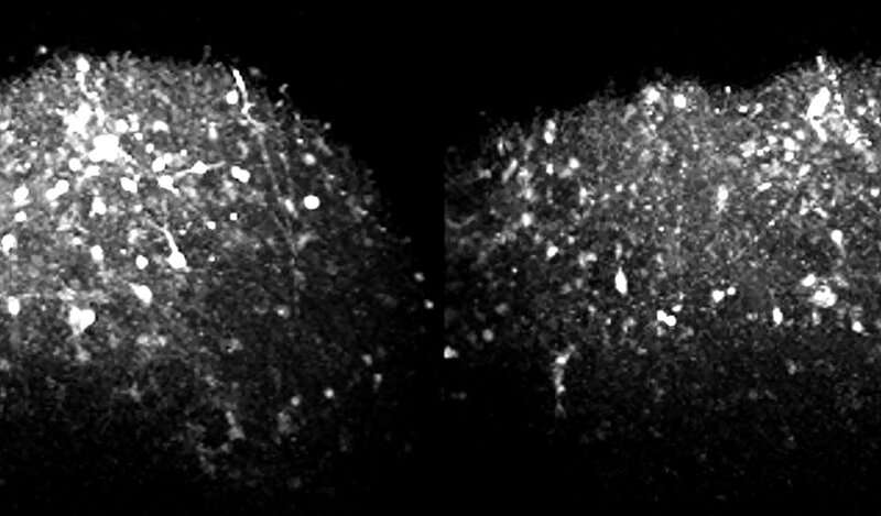Innovative research uncovers mechanism behind epilepsy in Angelman syndrome, may lead to future therapies