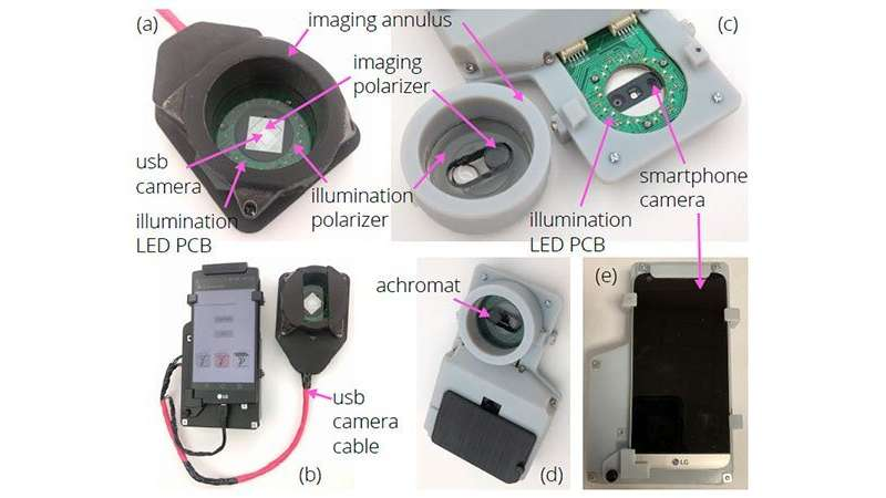 Innovative smartphone-camera adaptation images melanoma and non-melanoma