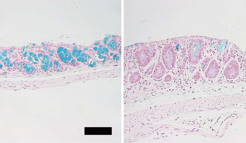 Loss of intestinal goblet cells causes fatal disease after stem cell transplantation