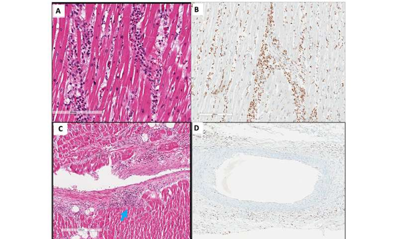 LSU health pathologists publish first report on likely MIS involving the heart