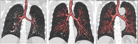 Lung development may explain why some non-smokers get COPD and some heavy smokers do not