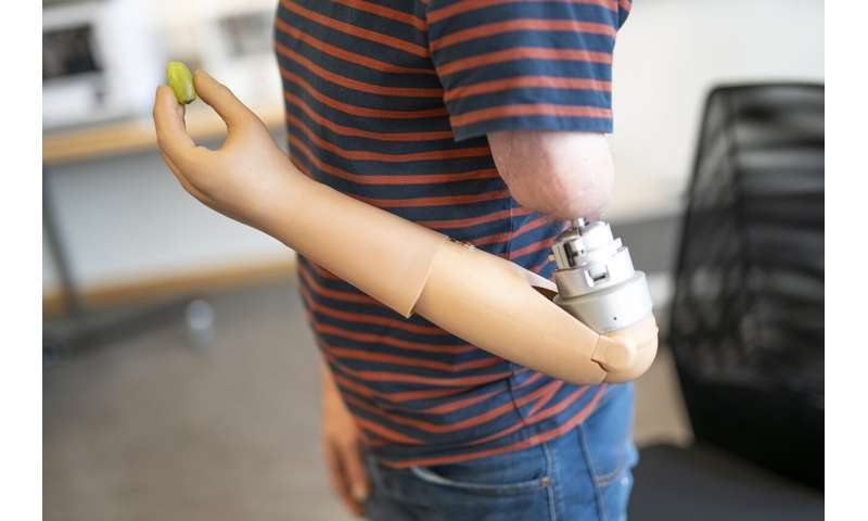 Mind-controlled arm prostheses that 'feel' are now a part of everyday life
