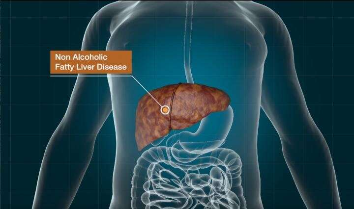 Modified Parkinson's drug shows potential in treating nonalcoholic fatty liver disease