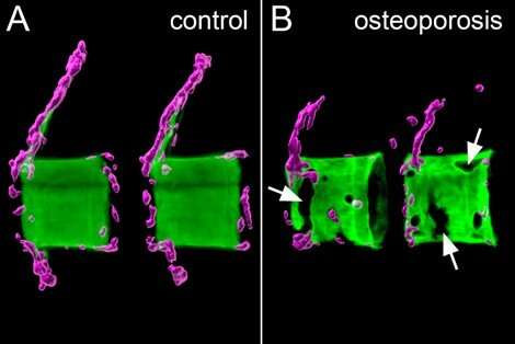 Modulating bone cell recruitment to prevent osteoporosis