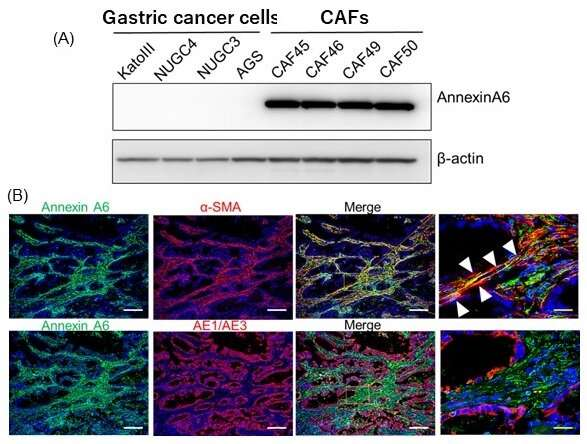Molecule secreted by cancer-associated fibroblasts promotes anticancer drug resistance