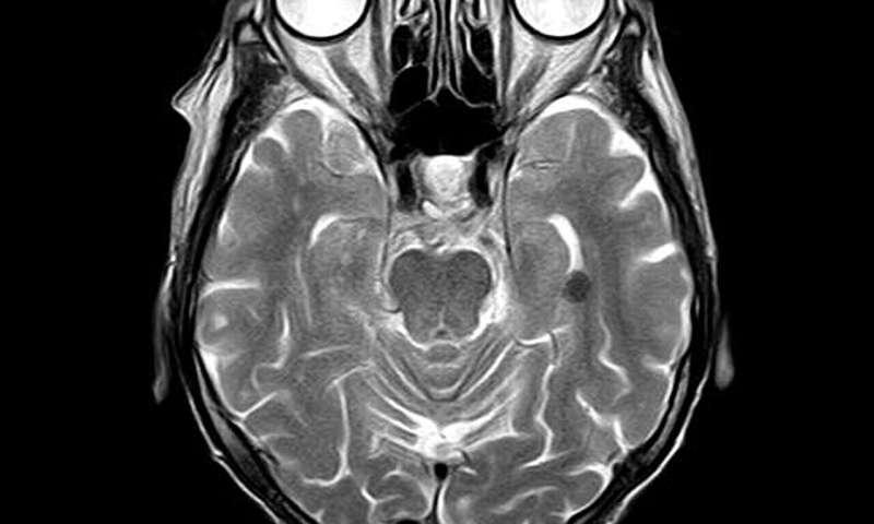 Researchers develop low-cost, portable brain imaging scanner thumbnail