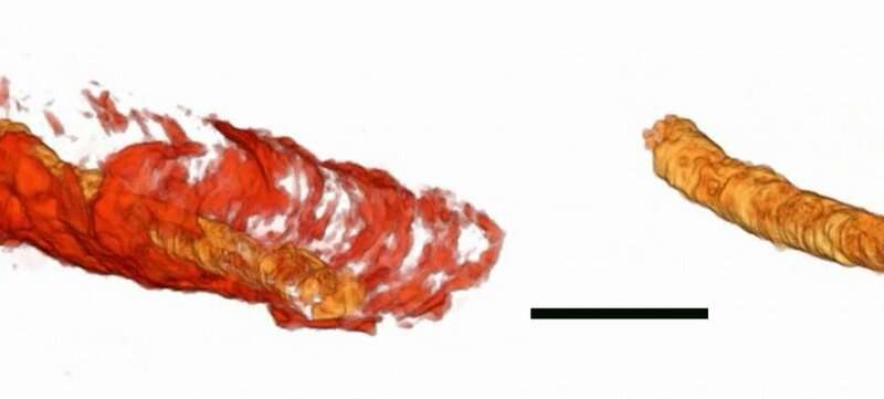 MU scientists find oldest-known fossilized digestive tract -- 550 million years