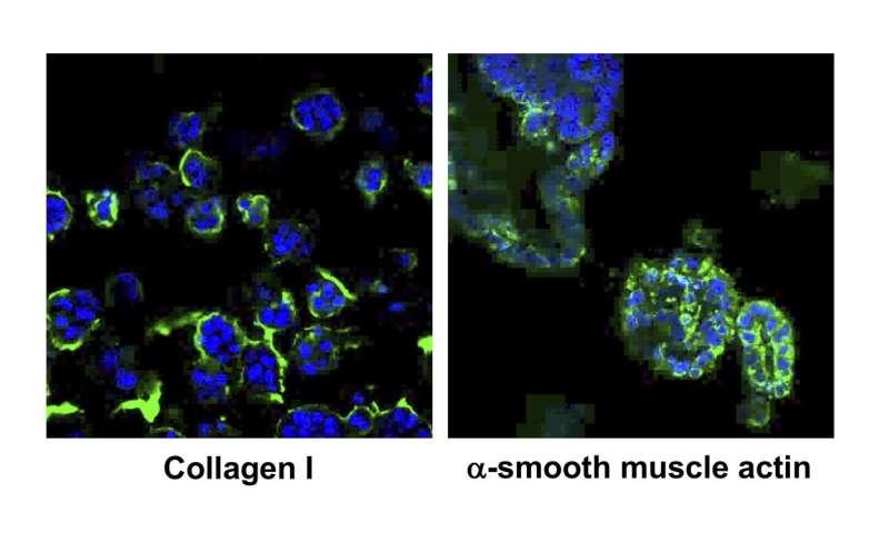 New 3D cultured cells mimic the progress of NASH