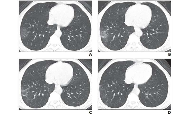 New CT scoring criteria for timely diagnosis, treatment of coronavirus disease (COVID-19)