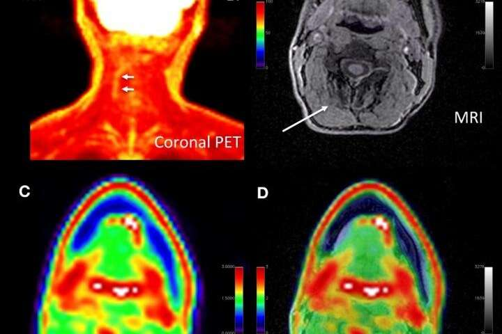 New PET/MRI approach pinpoints chronic pain location, alters management