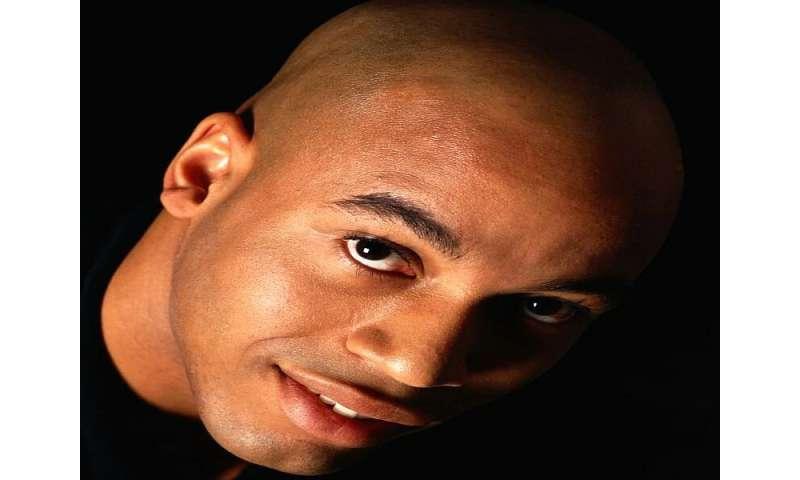 New technique improves face-lifts for balding men