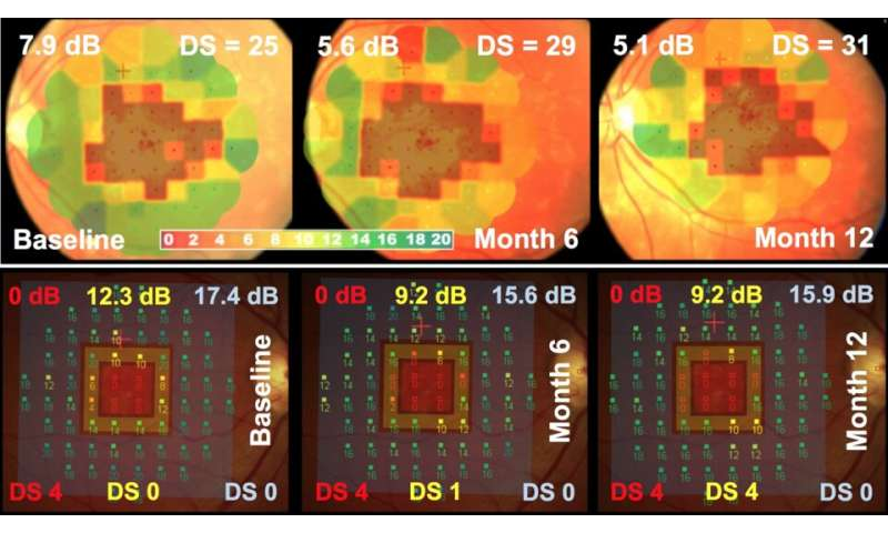 New ways to prove efficacy of emerging treatments for macular diseases
