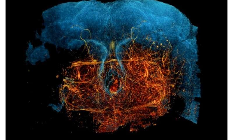 新的X射线显微镜技术可对密集神经回路全面成像为深入了解大脑结构开辟新途径