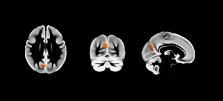 Night owls have more grey matter in their brains than early birds