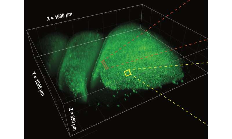 NIH BRAIN Initiative tool helps researchers watch neural activity in 3D