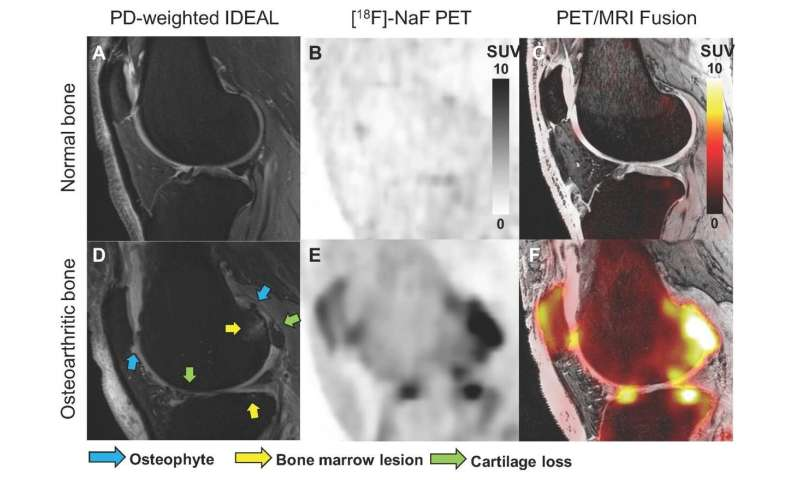 Novel bone imaging approach provides insights into the progression of knee osteoarthritis