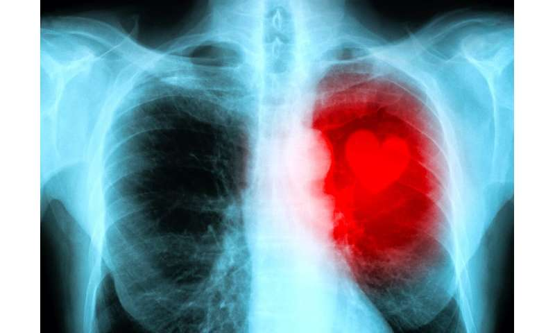 Obesity and overweight driving premature cardiovascular disease mortality, research finds