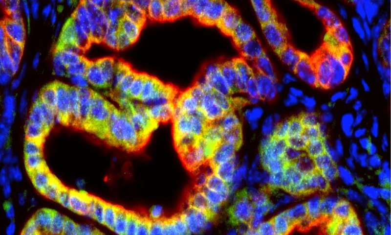 Pancreatic cancer cells secrete signal that sabotages immune attack on tumors