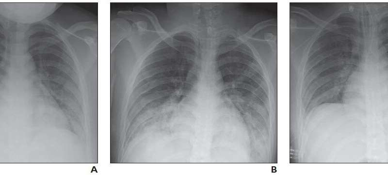 Pediatric coronavirus disease (COVID-19) x-ray, CT in review of new lung disorders