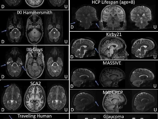 Perfecting MRI images with deep learning, Vanderbilt researchers change the way we see the brain