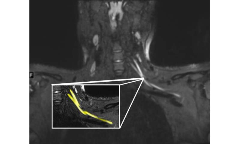 Post-COVID pain or weakness? Request an ultrasound or MRI