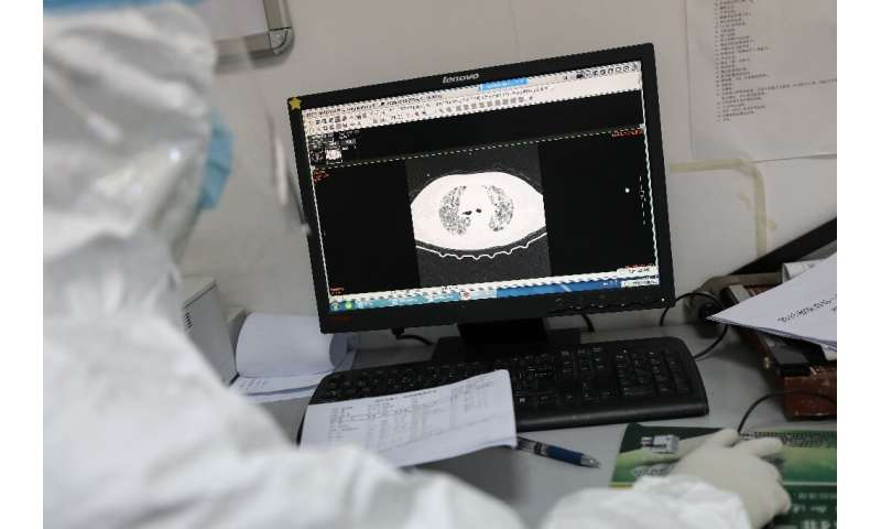 Previous diagnosis of the coronavirus in China has relied on lung imaging