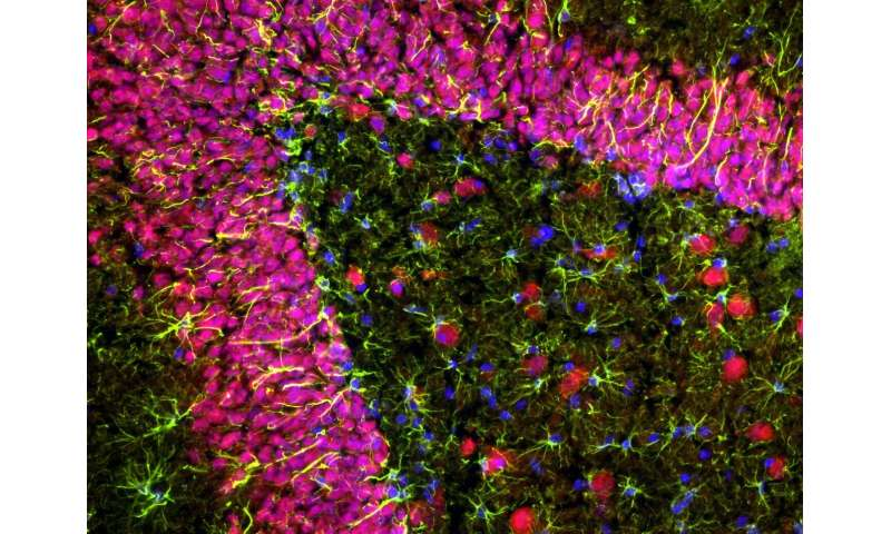 Reducing early brain inflammation could slow Alzheimer's progression