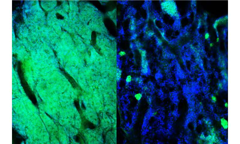 Resistant cancer cells can be targeted for elimination