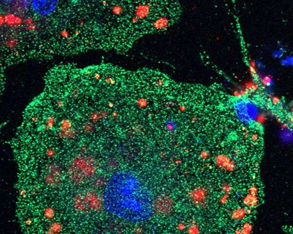 Retinoid X receptor boosts brain recovery after stroke in preclinical trial