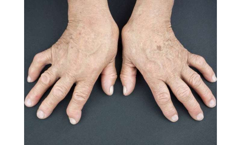 Rheumatoid arthritis patients remain unaware of CV risk