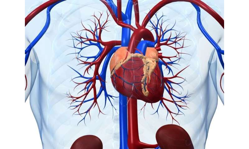 Right ventricular dilation linked to mortality in COVID-19